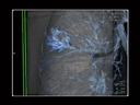 Siemens Healthineers - Advanced Therapies - Thoracic Surgery