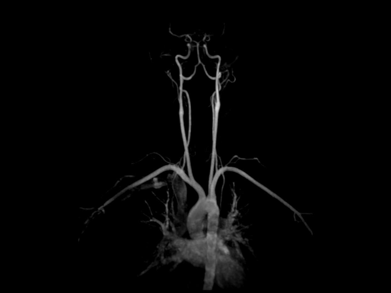 MR Angiography Carotids Image for MAGNETOM Skyra 3T