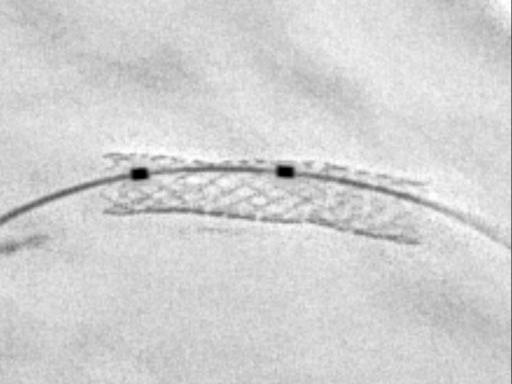 CLEARstent