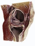 At RSNA 2017 Siemens Healthineers is addressing the most frequent MRI examiniation, imaging the knee, with the GOKnee3D application.