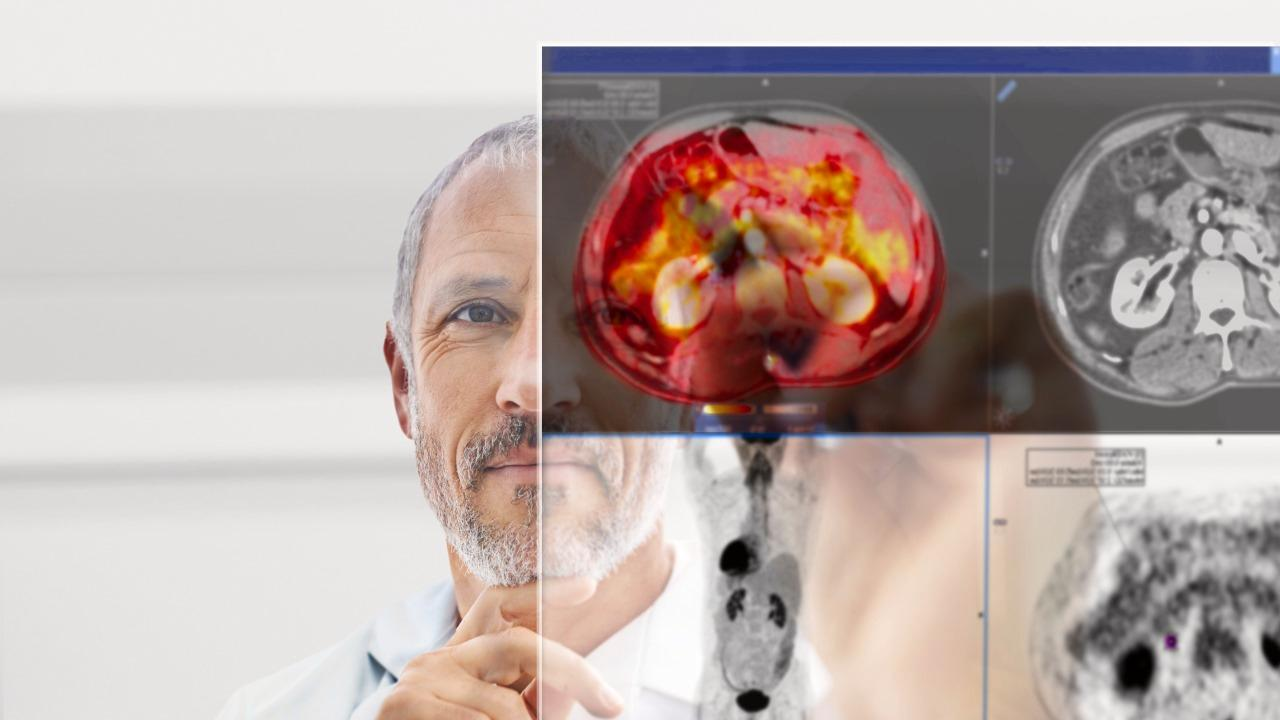 Siemens Healthineers has unveiled their new products at this year's RSNA. Take a look at all highlights!