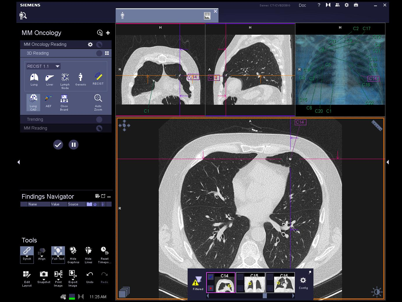 syngo.CT Lung CAD