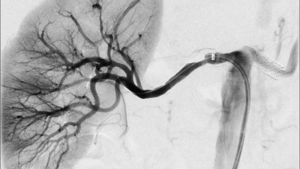 What Is Kidney Disease