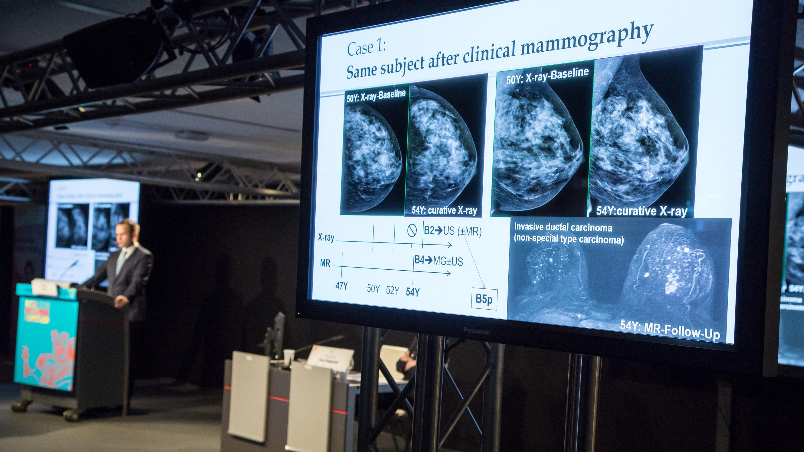 Although tomosynthesis – or 3D mammography – has only recently emerged as a promising tool in breast cancer detection, image acquisition and interpretation strategies are now being optimized through technological and reading workflow improvements.