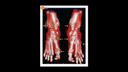 Dual-Energy CT Diagnosis of Gouty Arthritis in the Foot