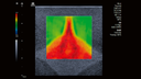Virtual Touch™ 2D shear wave Elastography