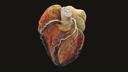 SOMATOM go.Top Cardiac CT