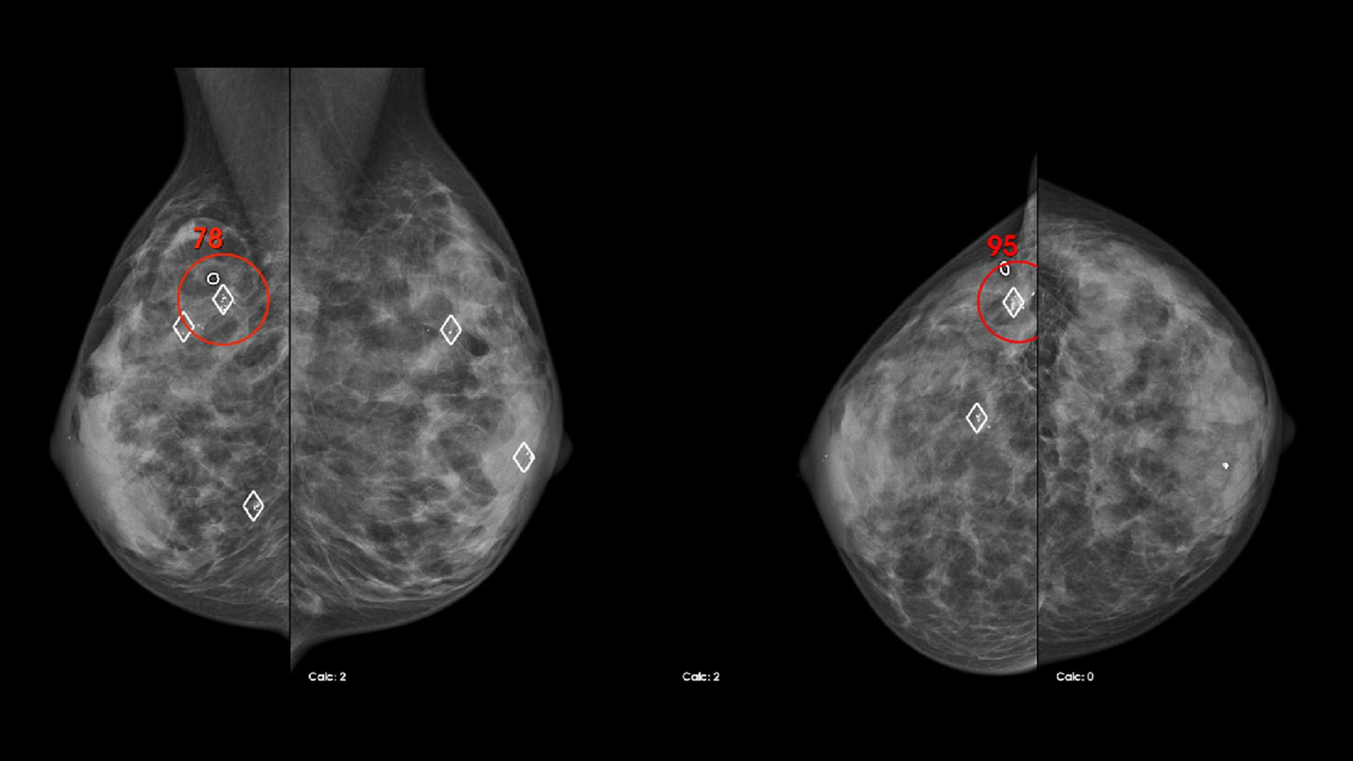 Computer-aided detection in mammography