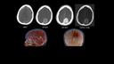 CT Onco, evaluation of a meningioma with TwinBeam Dual Energy