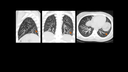 CT Onco, lung nodule detection with (ultra-) low-dose