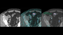 Enlarged views of CT and fused PET/CT images, from Biograph Vision, show a solitary lymph node metastasis.