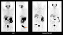 MIP images of 68Ga PSMA PET, from Biograph Vision, show a small focal uptake that is suggestive of a solitary lymph node metastasis.