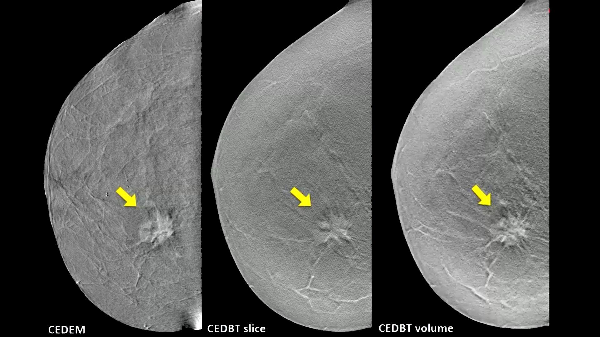 Contrast-enhanced breast tomosynthesis