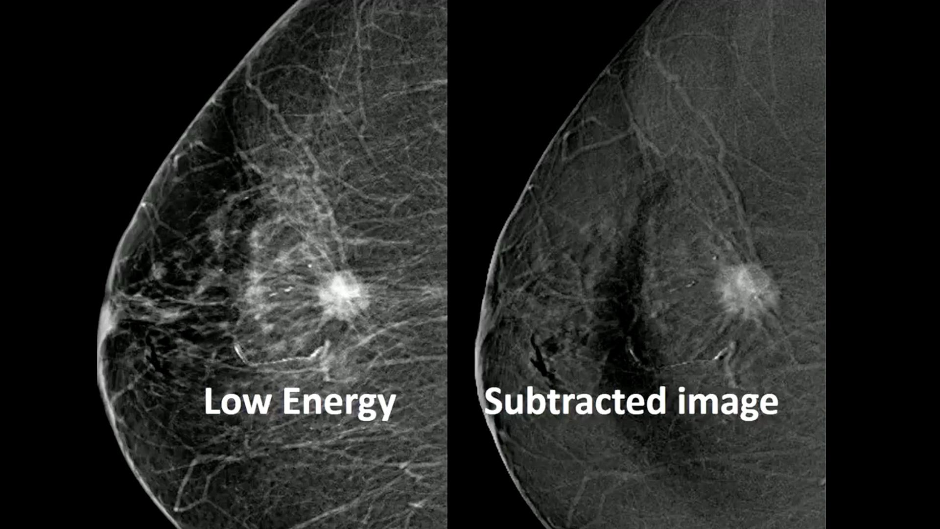 Contrast-enhanced mammography
