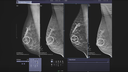Tomosynthèse mammaire - Santé de la femme - Siemens Healthineers