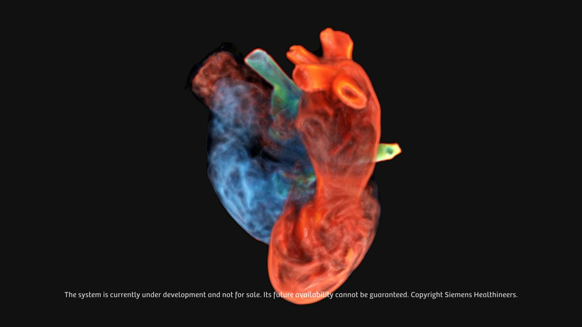 Video footage of Digital Twin of the heart