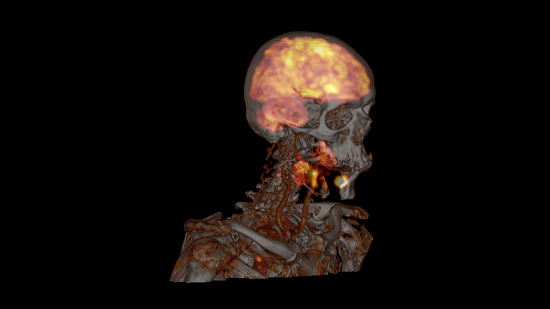 Erlanger head and neck PET/CT case study.