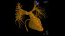 3D imaging using rotational angiography