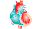 Enlarged Heart Image