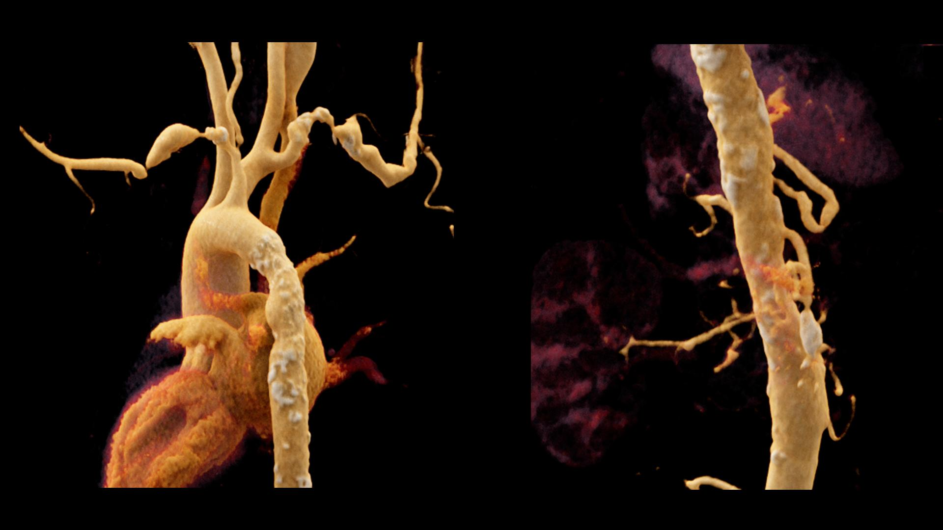A whole body CT angiography was performed to further investigate a suspected Takayasu arteritis in 43-year old female patient.