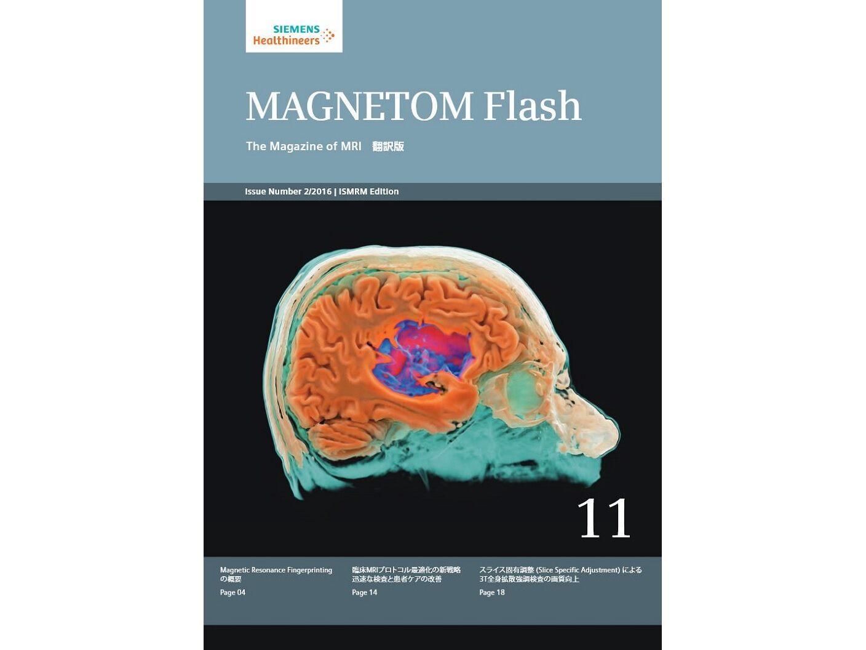 MAGNETOM Flash