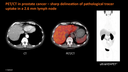 PET/CT in prostate cancer