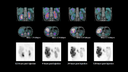 Coronal and transverse SPECT/CT fused images at the plane of both kidneys show normal cortical uptake with significant pelvicalyceal stasis at 0.5 hours post-therapy administration; 4-, 24-, and 120-hour studies show fast clearance of tracer from bilateral renal cortex as well as fast washout from both renal pelvises. Tracer concentration measurement from one region of left renal cortex shows highest cortical tracer concentration at 0.5 hours post injection with fast clearance. Cortical tracer concentration decreased by 75% within 24 hours post injection and less than 10% of initial cortical tracer concentration was retained by 120 hours. The clearance pattern from both kidneys suggested normal initial uptake and fast washout with minimal tracer retention, which reflects good renal function and potentially low renal dose from therapy administration