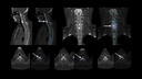 CT and fused xSPECT and CT image