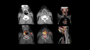 Axial CT and fused PET/CT images  show a hypermetabolic laryngeal mass involving the right pyriform sinus extending towards and crossing the midline (size 1.5x2x2.5 cm; SUVmax 9.47)