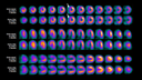 IQ·SPECT images