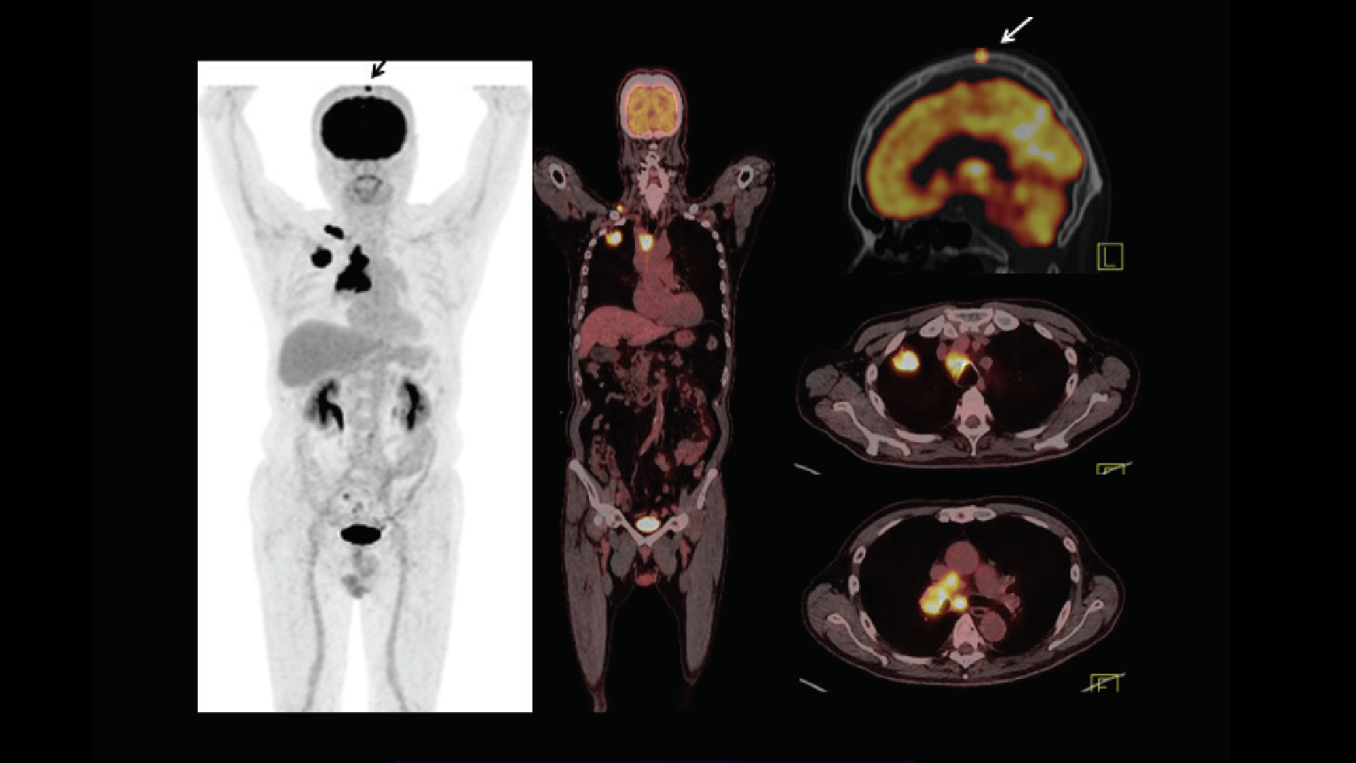 Current role of PET/CT in evaluation of lung cancer