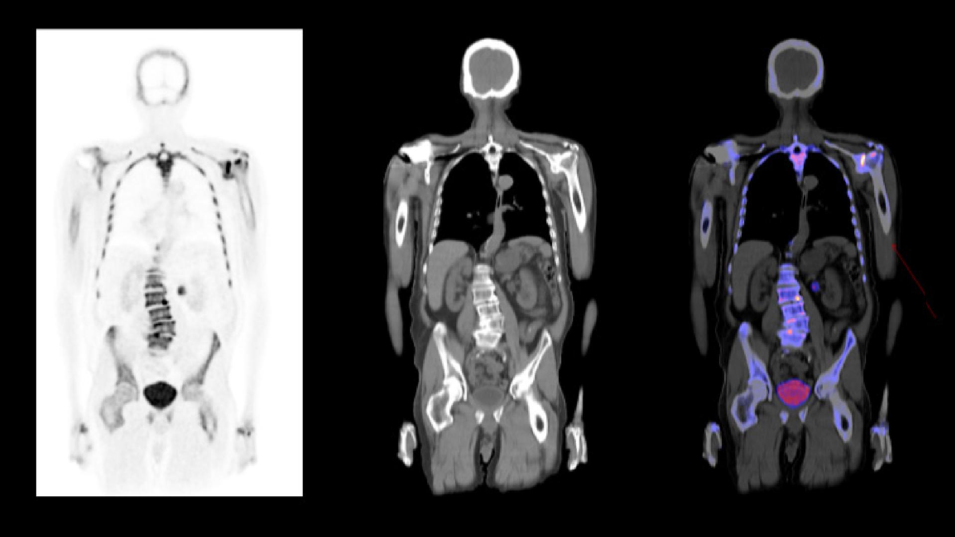 NaF PET/CT in prostate cancer