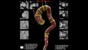 AI-Rad Companionによる画像解析のイメージ