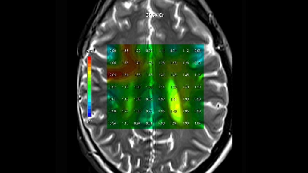 Formation IRM - Expert spectroscopie - Siemens Healthineers