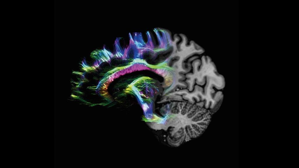 Formation IRM - Expert neurologie - Siemens Healthineers