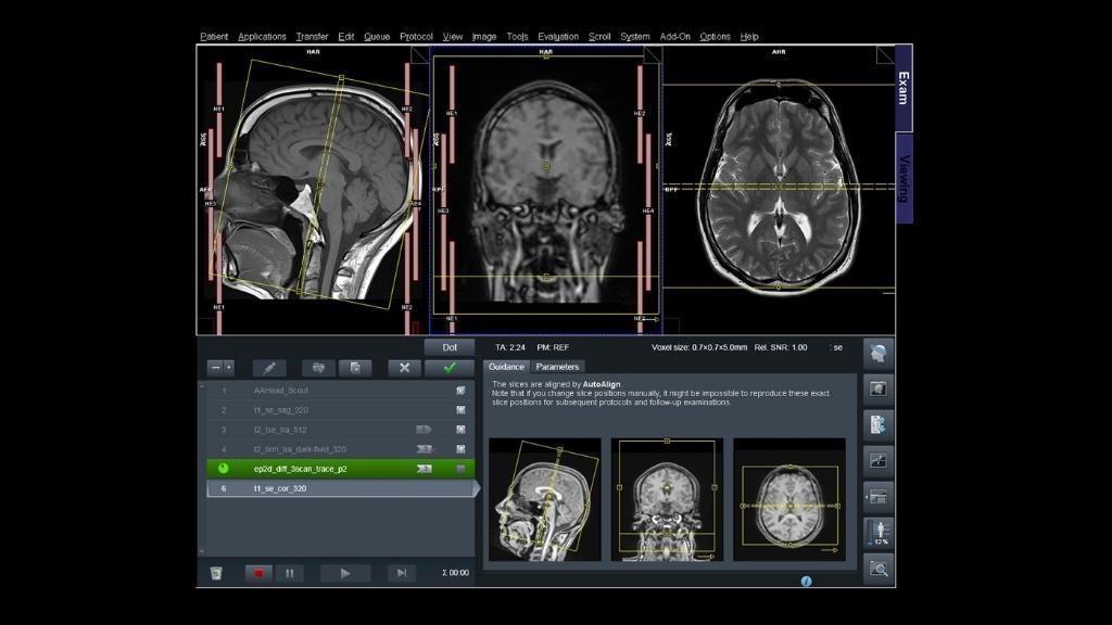 Formation IRM - Paramétrage de Dot™ - Siemens Healthineers