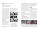 Lung MRI in Parenchymal Disease