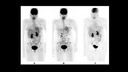 Multiparametric PET imaging in a case of breast cancer