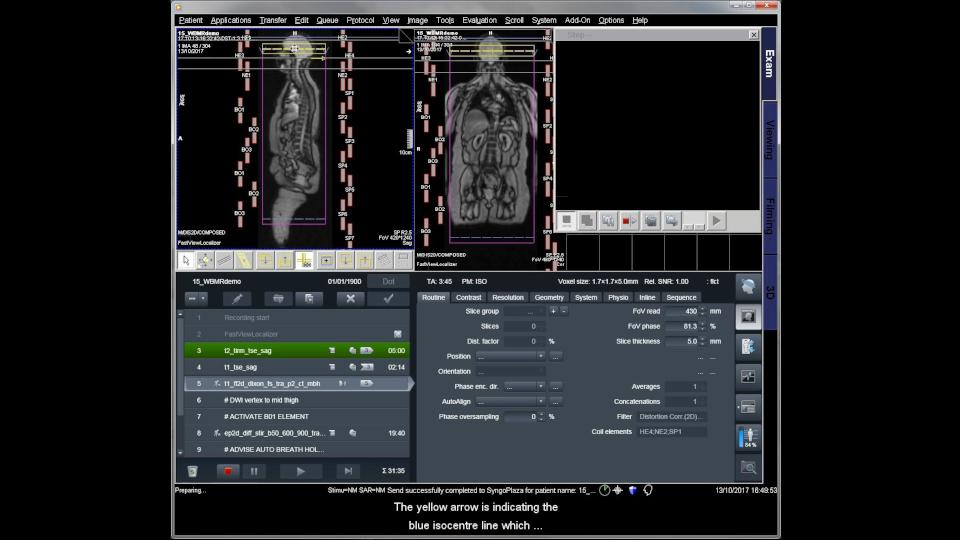 Just a glimpse of the video tutorial on whole-body MRI