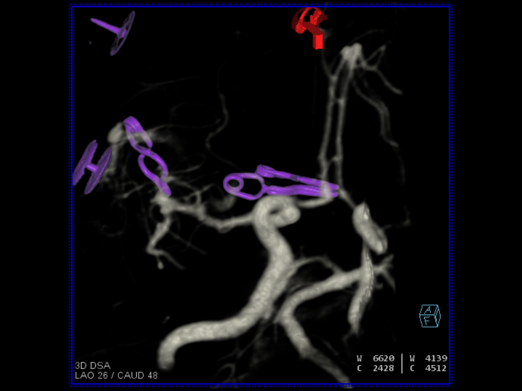 Follow-up of aneurysm clipping using syngo DynaCT with IV injection