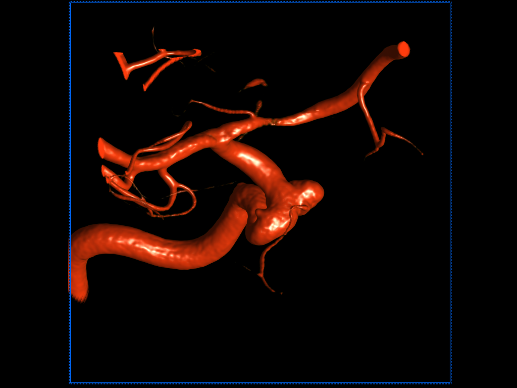 Embolization of an IC-ophthalmic artery aneurysm with coil and stent