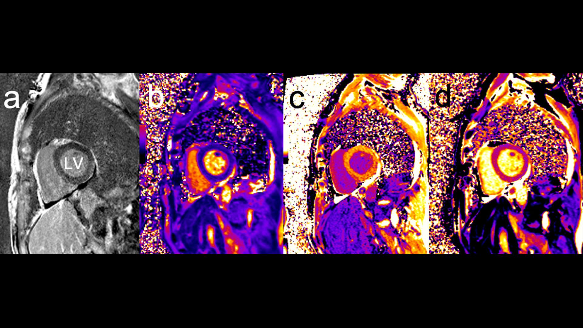 Patient undergoing immune checkpoint inhibitor (ICI) cancer therapy with troponin elevation and suspicion of immune myocarditis. While (A) LGE imaging demonstrates very faint diffuse enhancement, cardiac relaxometry with T1 and T2-mapping (at 1.5T) provides further information. (B) T2 mapping reveals a T2 time of 55 ms while (C) pre-contrast T1 values were 1184 ms and (D) post-contrast T1 values 519 ms (0.15 mmol/kg Gadobutrol). Based on the patient's hematocrit the ECV is calculated to 38%.
