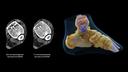 Изображения костных структур голеностопного сустава с фиксирующей металлической проволокой; эффективное сочетание технологий iMAR + Tin Filter + SAFIRE, CTDIvol: 1,33 мГр <br />Изображения предоставлены клиникой Тадокоро, г. Сайтама, Япония.