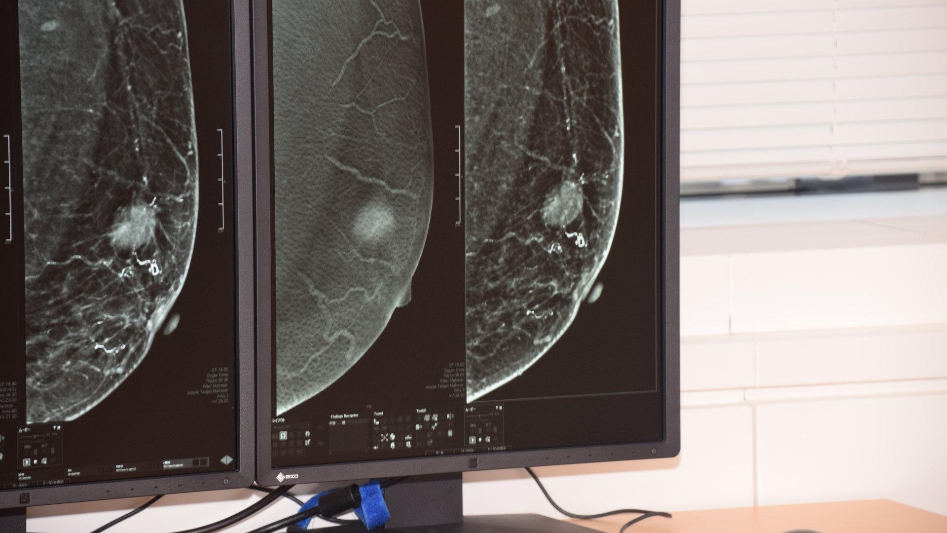 第5回 Advanced Breast Conference レポート