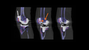 Sagittal-fused SPECT/CT slices through the right knee joint, from medial to lateral, show patellar hypermetabolism (white arrow) as well as cystic radiolucency in the lateral femoral condyle (orange arrows).
