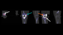 Coronal-fused SPECT/CT slices, captured from anterior to posterior, show patellar hypermetabolism (white arrows), bony overload stress in the medial femoral condyle (teal arrow), and hypermetabolism in the lateral femoral condyle adjacent to the prosthesis margin (orange arrow), all of which reflect bone stress.