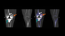 Coronal CT and fused SPECT/CT images show increased bone resorption in the medial femoral condyle with corresponding hypermetabolism (orange arrow).