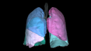 Molecular imaging 3D lung image with color lobes.