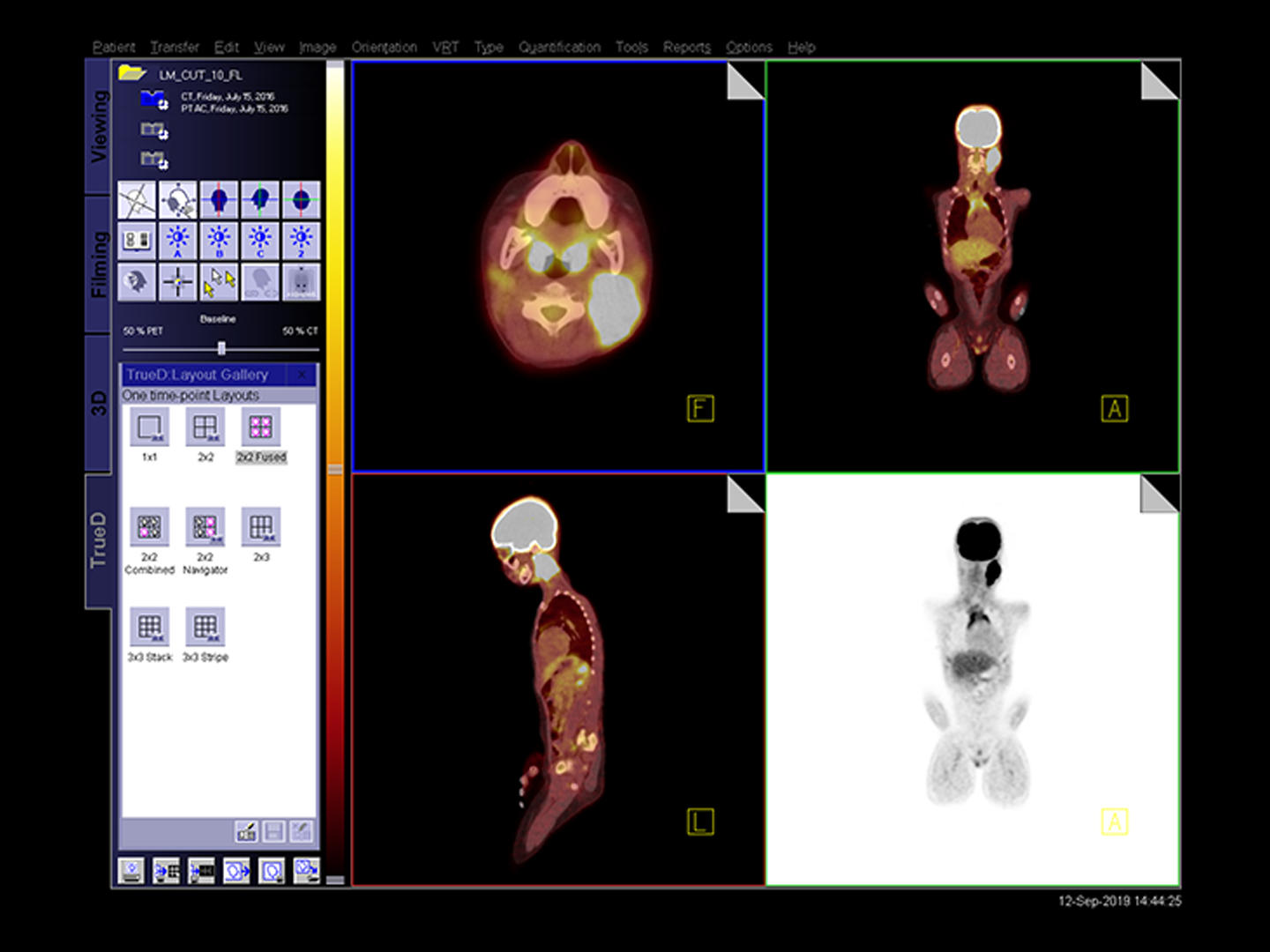 Siemens Healthineers body scan from PET/CT using FAST PET Workflow AI.