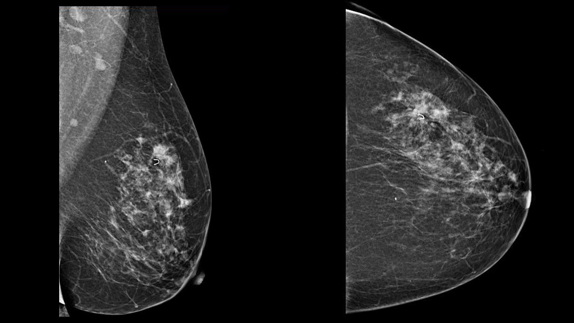 Эксперты считают, что существующие ограничения маммографии можно преодолеть с помощью новых подходов к визуализации, таких как томосинтез и сокращенные протоколы МРТ.